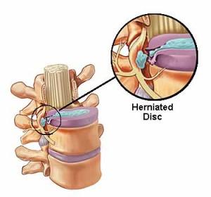 Disc bulge in neck