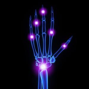 arthritis and heart disease
