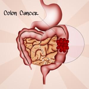 probiotics and colon cancer