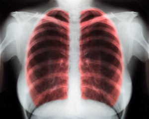 Pneumonia and antibiotics